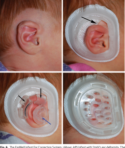 Lidding ear deformity