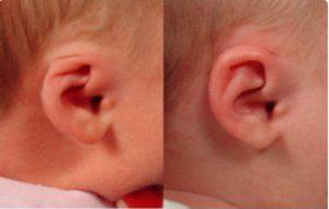 The Earwell™ Infant Ear Correction System treats Cryptocia Ear Deformity